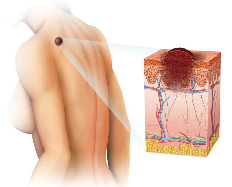 Skin Cancer Diagram